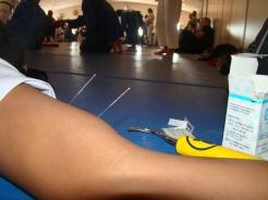 Dry Needling durante intervalo de lutas para quebrar a rigidez do Bíceps Braquial.