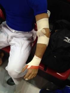 Técnica desenvolvida pelo profissional para lesões em cotovelo